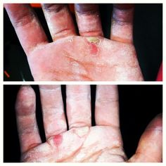 Dear #Helen, FUCK YOU! I ripped my hands! I tore off all 3 calluses! On the other hand (no pun intended) my kip is getting a lot better! #crossfit #crossfitgirls #crossfitmom #battlescars #helen #benchmarkgirls - http://girlsworkhard.com/dear-helen-fuck-you-i-ripped-my-hands-i-tore-off-all-3-calluses-on-the-other-hand-no-pun-intended-my-kip-is-getting-a-lot-better-crossfit-crossfitgirls-crossfitmom-battlescars-helen-benc/