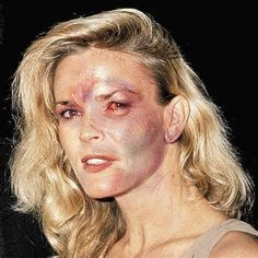 Nichole Brown Simpson after beating by OJ Simpson