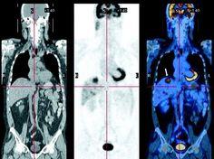 PET/CT – Entenda como este exame pode ajudar no tratamento do câncer.