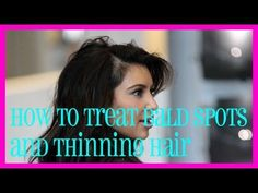 How to Treat Bald Spots and Thinning Hair Naturally - Bonheurfitness Hair Thickening Treatment, Hair Growth Treatment, Get Thicker Hair, Bald Spot, Bald Hair, Hair Loss Women, Hair Loss Remedies, Hair Restoration, Grow Hair