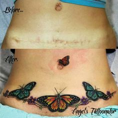 Wings Tattoo Ideas And Their Meanings Tummy Tuck Scar Tattoo, Tattoo Over Scar, Tummy Tuck Scars, Tattoos To Cover Scars, Stomach Tattoos, Cover Up Tattoos, Body Art Tattoos, Cool Tattoos, Waist Tattoos