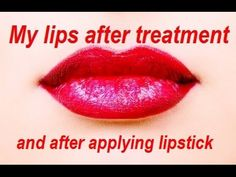 Fuller, PLUMPER LIPS without  Fillers Injections or Plastic Surgery