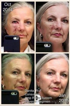 Amp MD roller + Redefine can positively impact scars from surgery, accidents, etc.