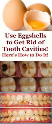 Natural Homemade Toothpaste That Can Heal Cavities, Gum Disease, And Whiten Teeth! Herbal Remedies, Health Remedies, Home Remedies, Natural Remedies, Health And Beauty, Health And Wellness, Health Fitness, Wellness Tips, Health Exercise