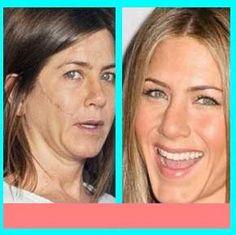 Skutočný zmizík na vrásky Facial, Tips, Inspirational, Get The Look, Truths, Dry Skin, Film Treatment, Facial Care, Facials