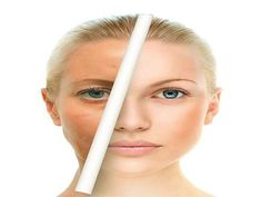 Now we have to learn how to proceed just about brown spots on my face. there are lots of treatments to get rid of brown spots on face. Diy Skin Care, Skin Care Tips, Skin Tips, Beauty Care, Beauty Hacks, Beauty Secrets, Beauty Tips, Brown Spots On Skin, Natural Beauty Remedies