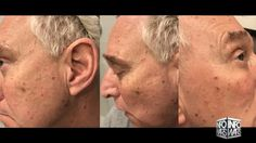 """Exclusive: Trump Operative Roger Stone Survives Assassination Attempt Published on Jan 17, 2017 // Stone served as an advisor to the 2016 presidential campaign of Donald Trump.[50] He left the campaign on August 8, 2015,[51] but remains a """"Trump confidante."""""""