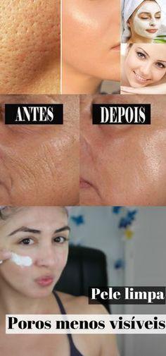 Aprenda esta receita para fechar os poros e ter uma pele lisinha! #pele #rugas #pelelisa #mulher #dicas #beleza