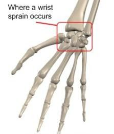 Natural Treatment Sprained Wrist