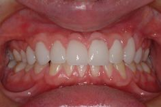 Eight front teeth restored with minimal tooth preparation Lumineers.