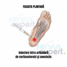 FASCIITA PLANTARĂ: durere de talpă și călcâi. Cauze și Soluții Plantar, Peace, Fitness, Calculus, Excercise, Health Fitness, World