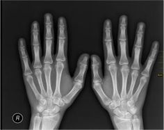 9 Fascinating X-Ray Facts
