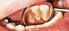 enlever la plaque dentaire naturellement