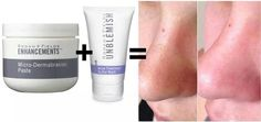 Need help with those blackheads? R+F can help with these two simple steps. Step 1 - Gently massage microdermabrasion paste on area and rinse. (You will love this so much you will want to pamper your entire face with it!) Step 2 - Use Unblemish Step 1 as a mask for 10 minutes.
