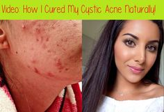 Using a brand-new acne item every couple of days may seem helpful, however that technique can intensify acne. Acne treatment needs time to work. Acne Treatment At Home, Cystic Acne Treatment, Cystic Acne Remedies, Natural Acne Remedies, Overnight Acne Remedies, Greasy Skin, Essential Oils For Face, Acne Causes, Acne Spots