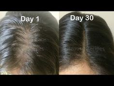 Vitamin E Oil + Onion juice for Hair Growth, Long Hair, Thick hair, Regrow lost hair from roots