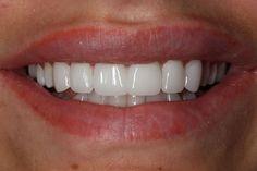 Best Teeth Whitening Kit – Pick Your Choice Toenail Fungus Treatment, Nail Treatment, Best Teeth Whitening Kit, Charcoal Teeth Whitening, Perfect Smile Teeth, Veneers Teeth, Dental Veneers, Beautiful Teeth, Makeup Ideas