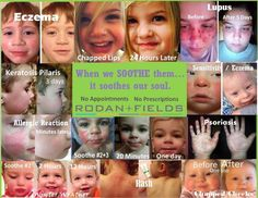 Soothe can work wonders for you, too!!