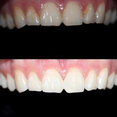 Brash Dental Crowns Before And After Health Dental Crown Procedure, Cosmetic Dentistry Procedures, Dental Veneers, Emergency Dentist, Dental Crowns, Dental Implants, Oral Health, Teeth Whitening, Porcelain