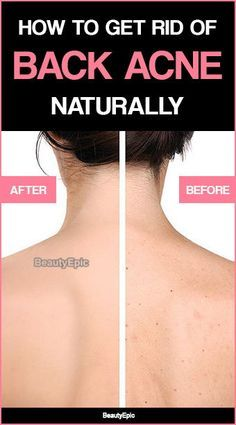 How To Get Rid of Back Acne Fast Naturally You know what is embarrassing than a acne over your right cheek? It is the back acne! Here are Simple Tips on How To Get Rid of Back Acne Fast Naturally Eyeshadow Basics, Back Acne Treatment, Natural Acne Treatment, Acne Treatments, Beauty Hacks For Teens, Acne Scar Removal, Hair Removal, How To Get Rid Of Acne, Tips Belleza