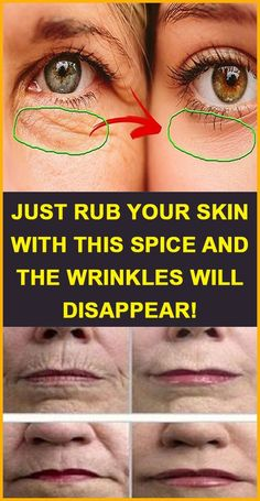 Just rub your skin with this spice and the wrinkles will disappear! Just rub your skin with this spice and the wrinkles will disappear! Just rub your skin with this spi Home Beauty Tips, Diy Beauty, Beauty Hacks, Homemade Beauty, Beauty Products, Beauty Ideas, Beauty Advice, Beauty Guide, Best Skin Products