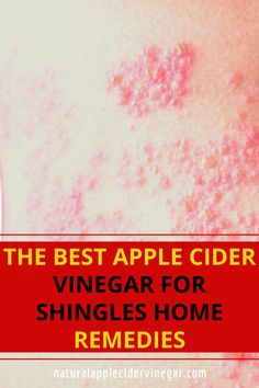 Are you looking for a apple cider vinegar for shingles remedy. This article contains a natural remedy to relieve shingles naturally. Use this natural remedy using apple cider vinegar to relieve shingles naturally. Check out this great recipe to naturally relieve shingles naturally without using harmful ingredients that are bad for you. #relieveshinglesnaturally #shinglesremedy #natrualcare #homeremedy #applecidervinegar Cure For Shingles, Shingles Remedies, Best Apple Cider Vinegar, Natural Homes, Natural Home Remedies, Natural Treatments, Great Recipes, The Cure, Good Things