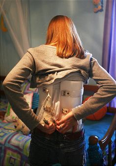 backbracesforscociolsis | Study looks at whether back braces offer benefit for scoliosis