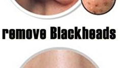 Natural way to remove blackheads from your nose