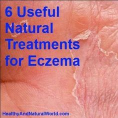Are You Plagued With Eczema? If So, Read This * Want additional info? Click on the image.