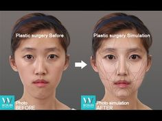 Eyelid surgery and nose job in korea Before and after This is one kind of blepharoplasty, korean double eyelid surgery. Also known as the 'pinch method', dou...