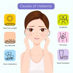 Causes of melasma on the face Premium Ve. Skin Aesthetics, Vitiligo Treatment, Pregnancy Hormones, Skin Specialist, Skin Clinic, Flaky Skin, Moisturiser, Skin Problems, Face Wash