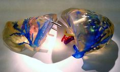 A new method of 3D printing an anatomically accurate replica of the human liver is now helping to guide surgeons during tricky procedures, researchers report.  The 3D-printed models of the human liver are made of transparent material that is threaded with colored arteries and veins. These livers could help surgeons prevent complications when performing liver transplants, or removing cancerous tumors, researchers said.