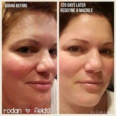 Rodan + Fields gives you the best skin of your life and the confidence that comes with it. Created by Stanford-trained Dermatologists, we understand skin. Our easy-to-use Regimens take the guesswork out of skincare so you can see transformative results. Redefine Regimen, Rodan And Fields Redefine, Cosmetics Ingredients, Heart And Lungs, Makeup Needs, Face Wash, Glowing Skin, Good Skin, Health And Beauty