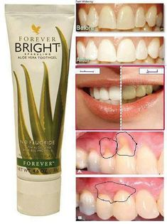 Mouth care is an area in nursing that seems to have a low priority (Griffiths and Boyle, Aloe Vera Gel Forever, Forever Living Aloe Vera, Forever Aloe, Forever Bright Toothgel, Aloe Heat Lotion, Forever Living Business, Dental, Aloe Vera Skin Care, Forever Living Products