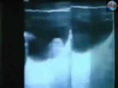 Gregg Braden - Wylecz wszystkie choroby w 3 minuty (napisy PL) - YouTube