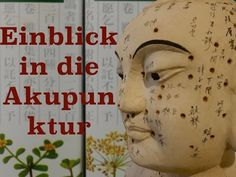 Akupunktur in Berlin - Wir zeigen wo sie Ihnen helfen kann - tcm24.de #Akupunktur #Behandlung #Rückenschmerzen