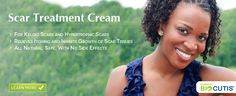 Scar Removal, Keloid Scars, Keloids - Hypertrophic Scarring Treatment Cream