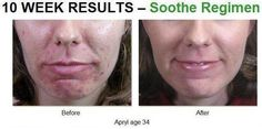 Got sensitive skin? I can help kprovost.myrandf.com