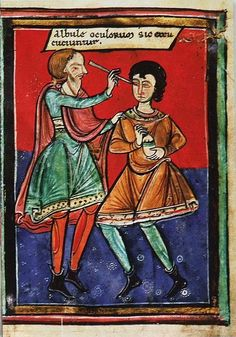 12th century medieval eye surgery in Italy. It was common in manuscripts to paint the details wich where important big. The cataract-needle was a very fine needle which was used to push the grey lense away from the pupil. This cataract surgery is made the same since the roman period and worked well. Today you use laser, but you do basically the same thing.