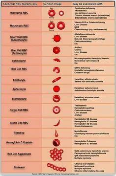 Blood smear                                                                                                                                                                                 More