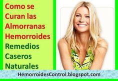 Cómo se Curan las Almorranas Hemorroides en el Ano: Remedios Caseros Naturales para Eliminar las Almorranas en el Ano de forma natural.