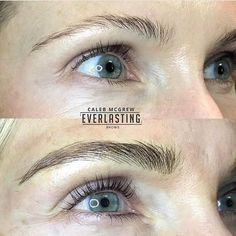 Microblading is the manual process of introducing semi-permanent makeup, in the form of coloured pigments, to mimic hair on the eye brows.   The design is waterproof, smudge proof, and looks completely natural, with this technique we are able to achieve fullness and shape, by mimicking hair where no hair existed previously.