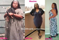 Maxine lost 205 pounds with weight loss surgery | Black Weight Loss Success