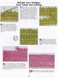 Hairpin patterns