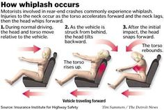 It's more than a pain in the neck! Natural Relief for Whiplash-Blair Chiropractic Upper Cervical Chiropractic, Chiropractic Treatment, Whiplash Injury, Car Accident Injuries, Cognitive Behavioral Therapy, Personal Injury, Car Crash, Neck Pain, Exercises