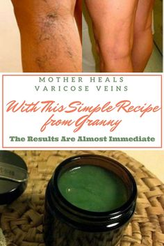 Mother Heals Varicose Veins With This Simple Recipe From Granny, The Results Are Almost Immediate!