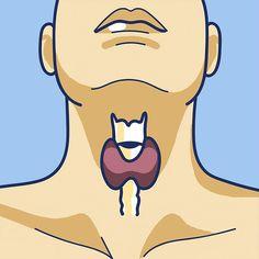Si la tiroides se vuelve demasiado activa, producira mas hormonas tiroideas de la cuenta, desarrollando hipertiroidismo. Si por el contrario, reduce su actividad, acabaras desarrollando hipotiroidismo.