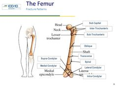 Distal humerus fracture icd 10