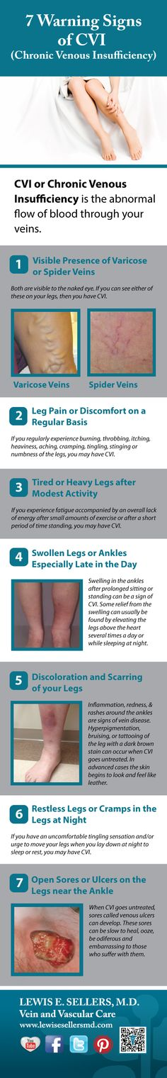 Check out the 7 Signs of Chronic Venous Insufficiency or CVI, the cause of Spider and #Varicose Veins. If you have one or more of these symptoms, you should consider consulting a physician. CVI is a progressive disease, meaning it gets worse with time. Via @Lewis E. Sellers, M.D.