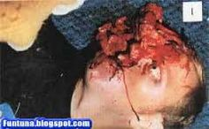 Graphic images of Farm Murders in South Africa NOT FOR SENSITIVE VIEWERS. The government claim these attacks are normal criminals Criminals that want to steal from the farms you tell me if you think these. White Wash Walls, White Lives Matter, Pale Face, White P, Black Power, Photo S, South Africa, Image